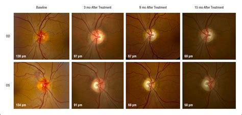 Visual Observations of an American Patient With Leber