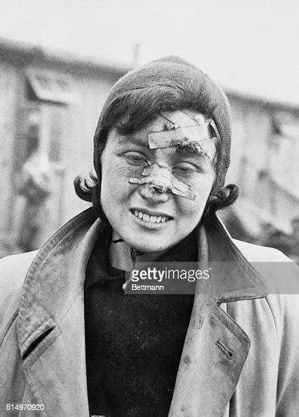 Victim of Nazi Brutality Liberated From Belsen 1945