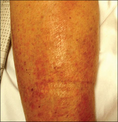 Edema: Diagnosis and Management - - American Family Physician