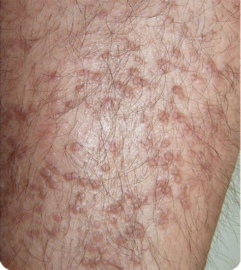 Pruritic Hyperkeratotic Papules on the Legs of a Patient